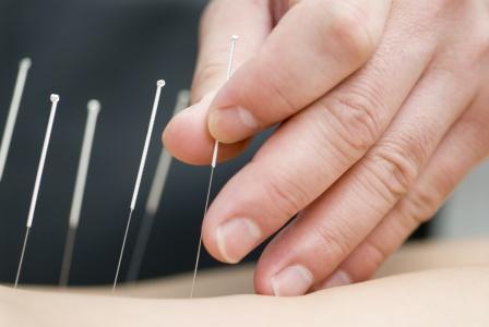 ¿La acupuntura puede aliviar el estreñimiento?